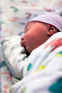 Klumpke Palsy Birth Injury