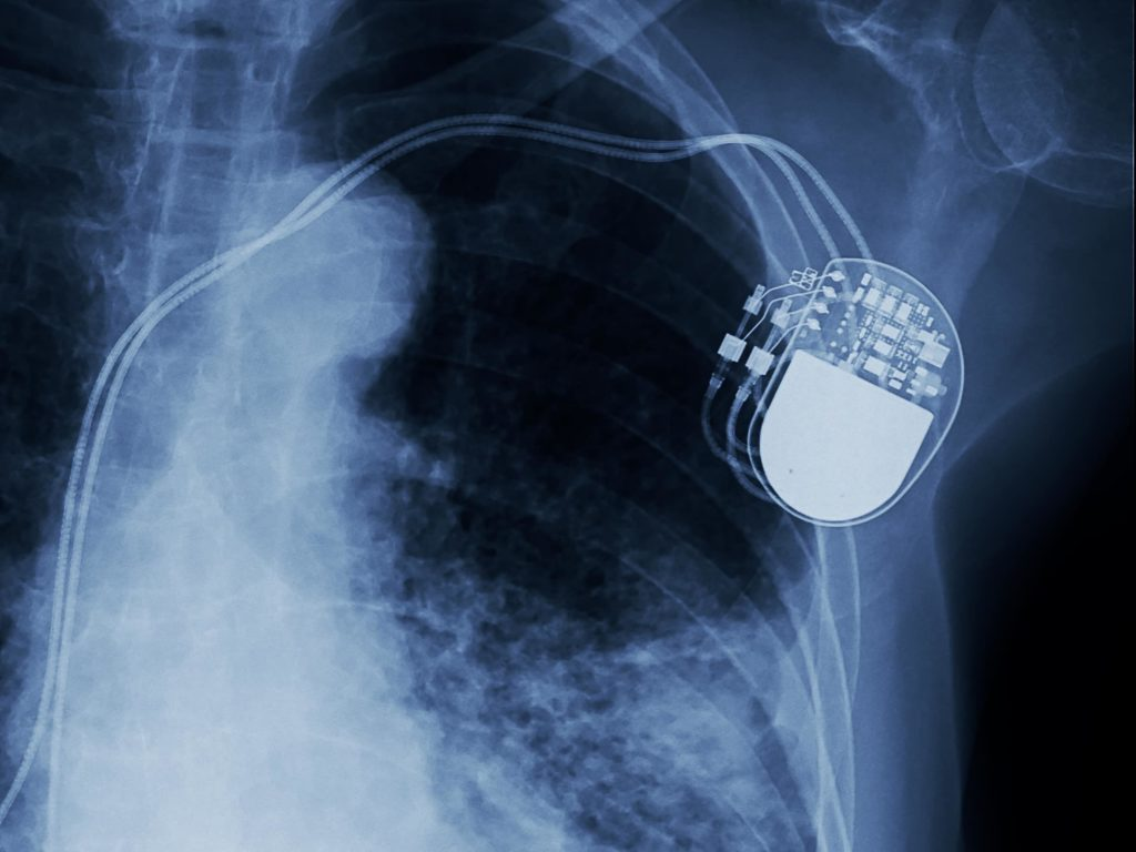 Pacemaker shown in X-ray image