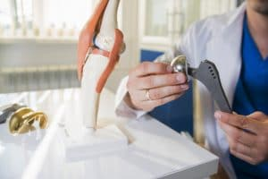 Doctor holds a hip implant next to a knee implant on a table alongside a physiological model of a knee
